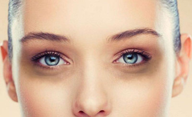 coprire le occhiaie
